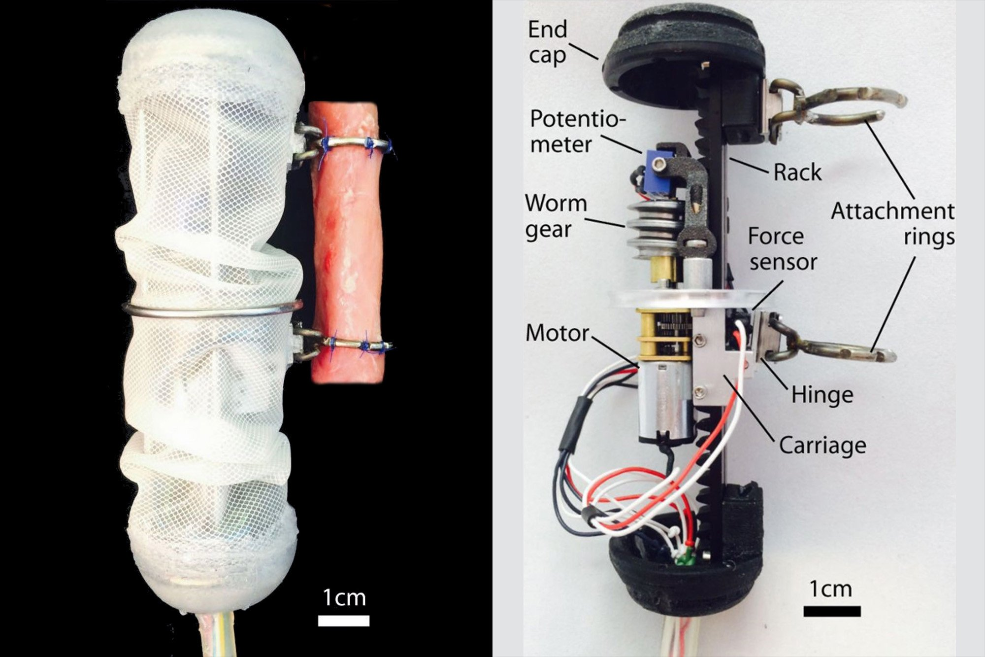 Robotic implant stretches your organs to help them heal