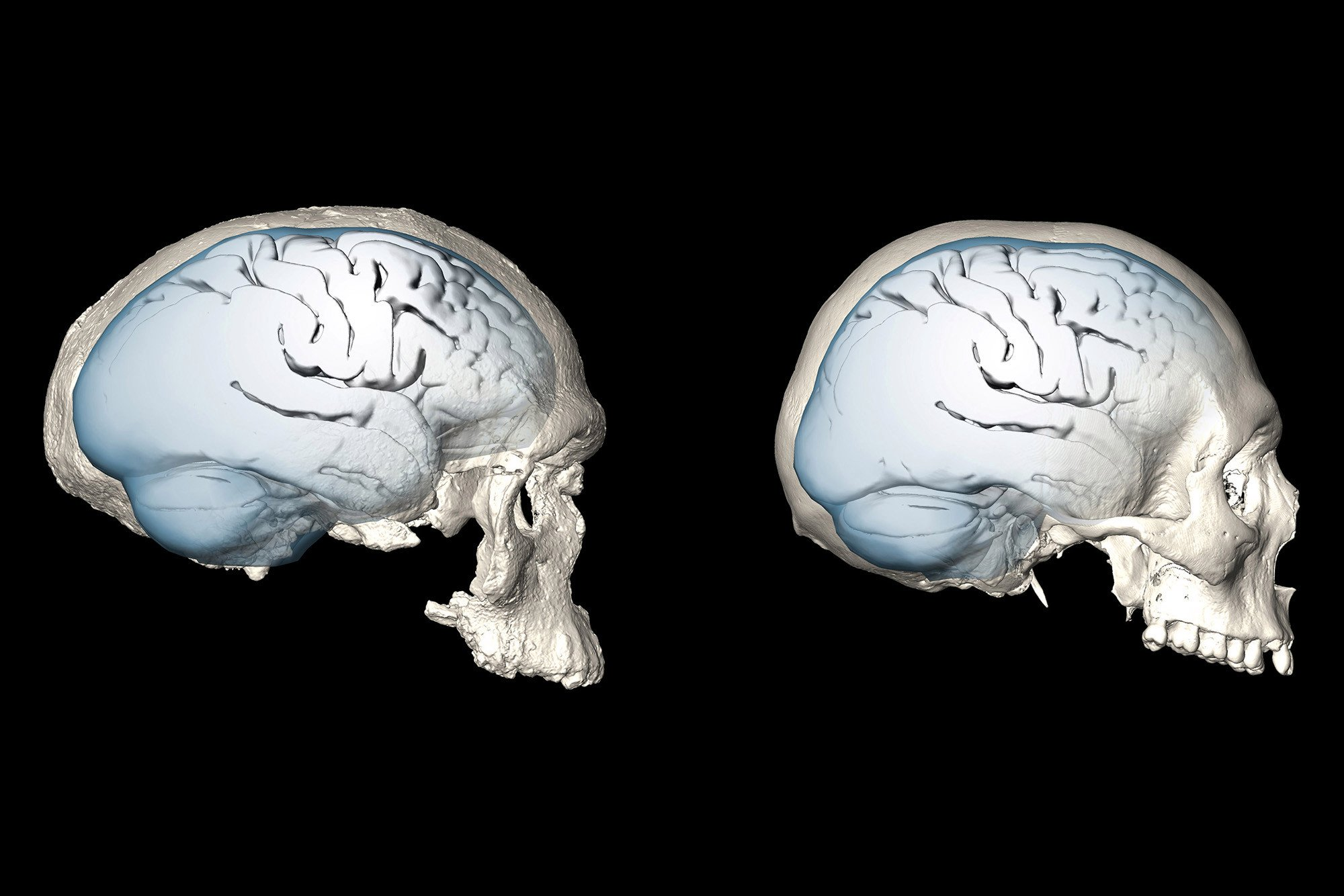 Shape of the human brain evolved over time