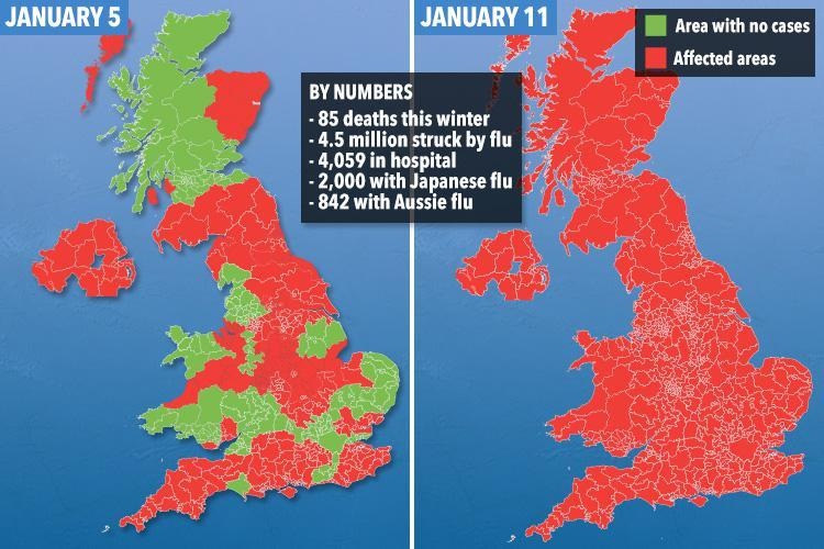 Japanese flu is spreading fast across the UK amid Aussie flu outbreak – as death toll reaches 85