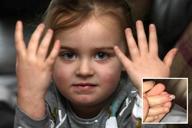 Girl, 4, left with 'bleeding nails' after using My Little Pony nail varnish in kids' toy