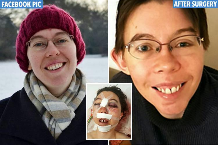 Junior doctor whose face was kicked in by a horse has it reconstructed by surgeons using her FACEBOOK photos