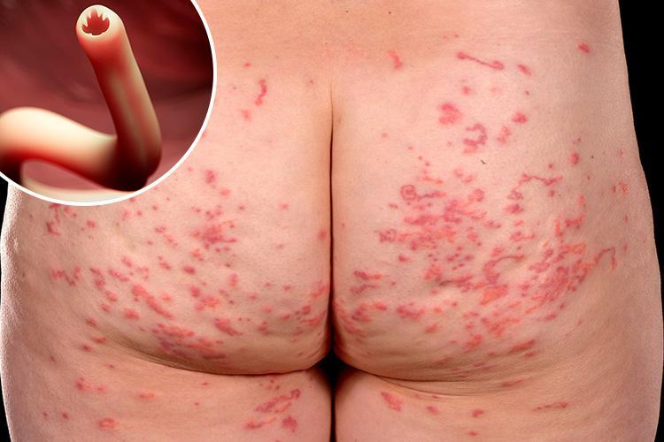 Couple with burning red rash on their backsides discover it's WORMS burrowing into their skin