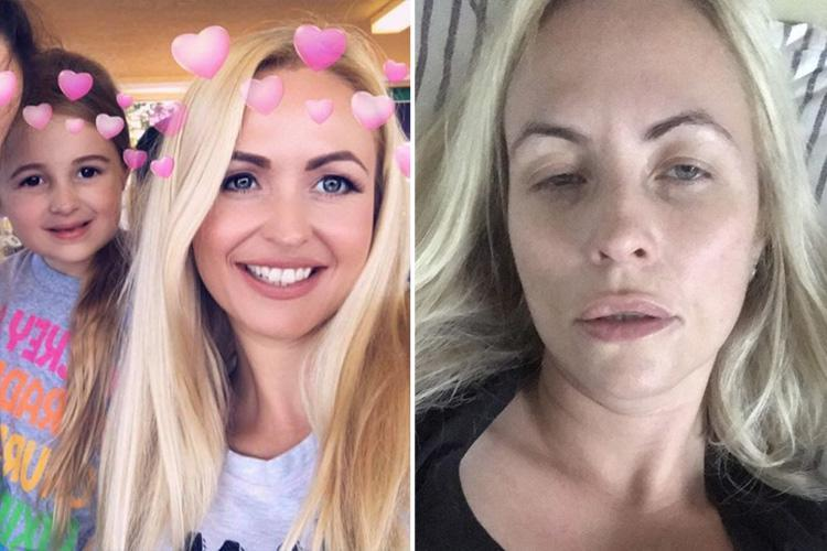Mum-of-four's Aussie flu left her with symptoms so bad she thought she had meningitis or DENGUE FEVER