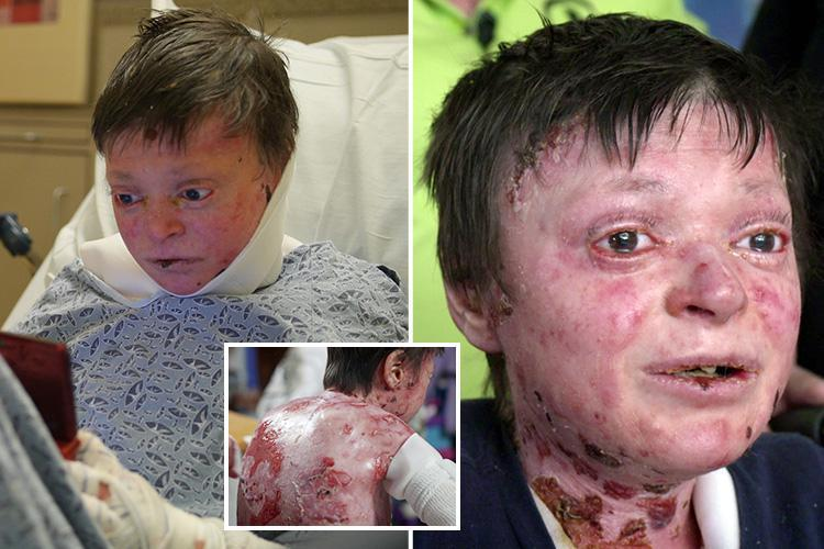 Boy born with rare 'Butterfly disease' that leaves him with no skin refuses surgery because he's scared of dying on the operating table