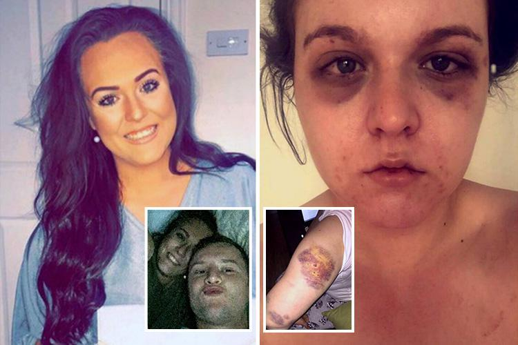 Girlfriend, 22, relives horrific six-hour battering at hands of abusive lover who hit her over head with plank of wood