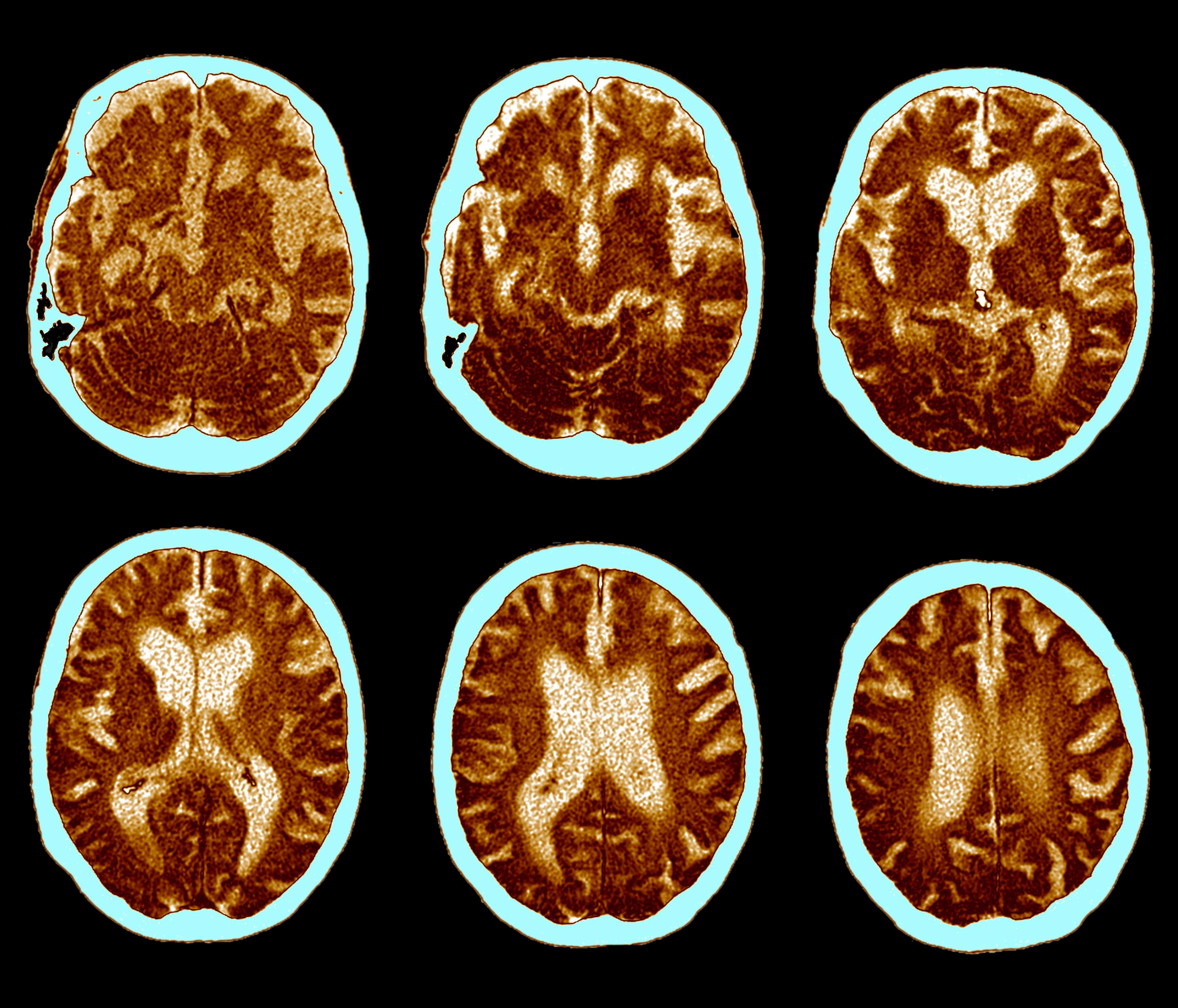 Eating at the same time each day 'could help fight Alzheimer's'