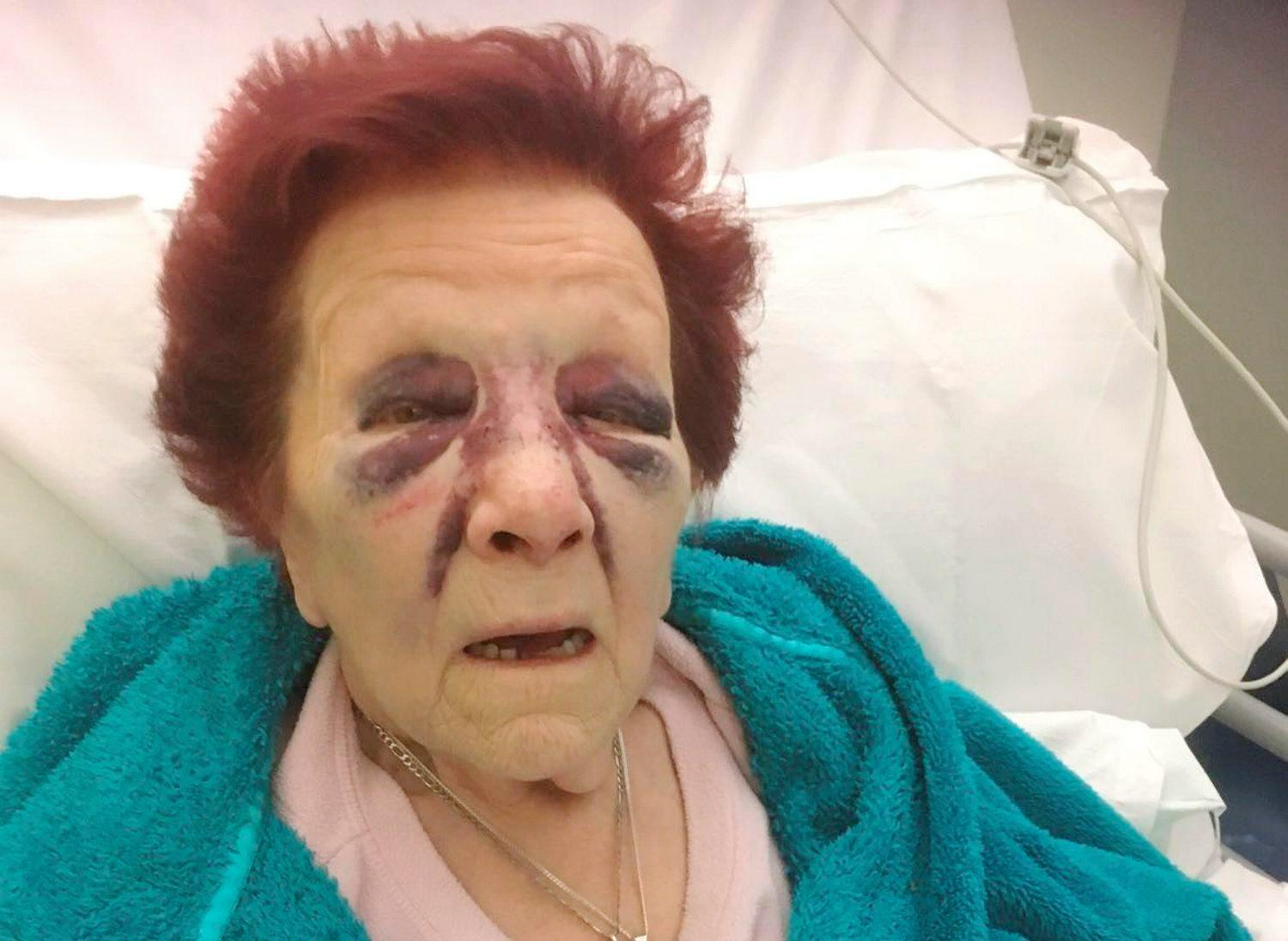 Gran was left with bleed on the brain after burglar dressed as policeman attacked her in own home