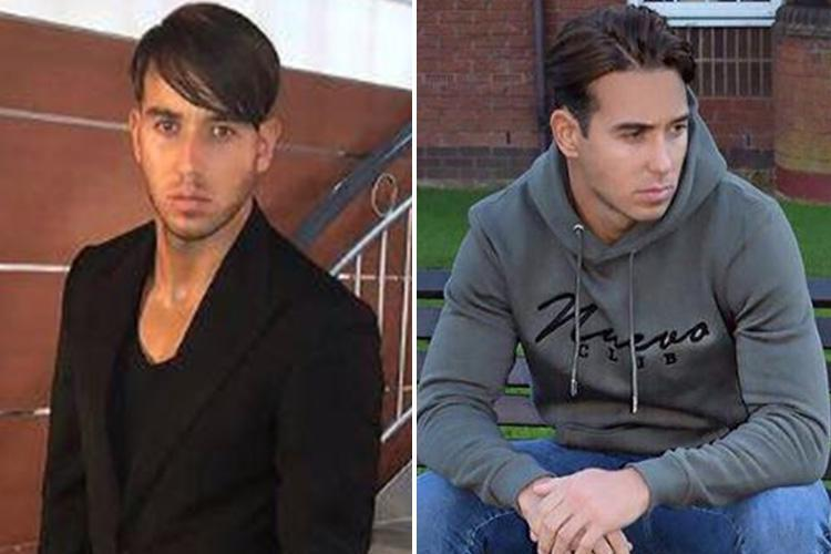 Towie's James Lock hits back at fans who mocked his new 'Justin Bieber' hairstyle and claims it's all down to his hair transplant