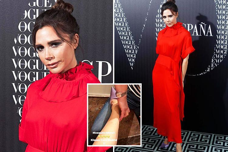 Victoria Beckham covers up in a sheer red dress at Vogue dinner in Madrid after attempting to hide her bug bites with make-up