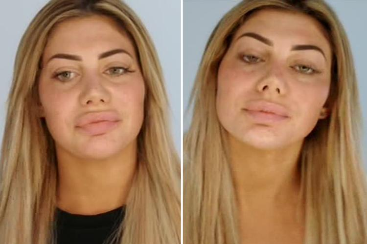 Geordie Shore's Chloe Ferry wants SECOND nose job after bullies said she 'looked like a pig' after first op