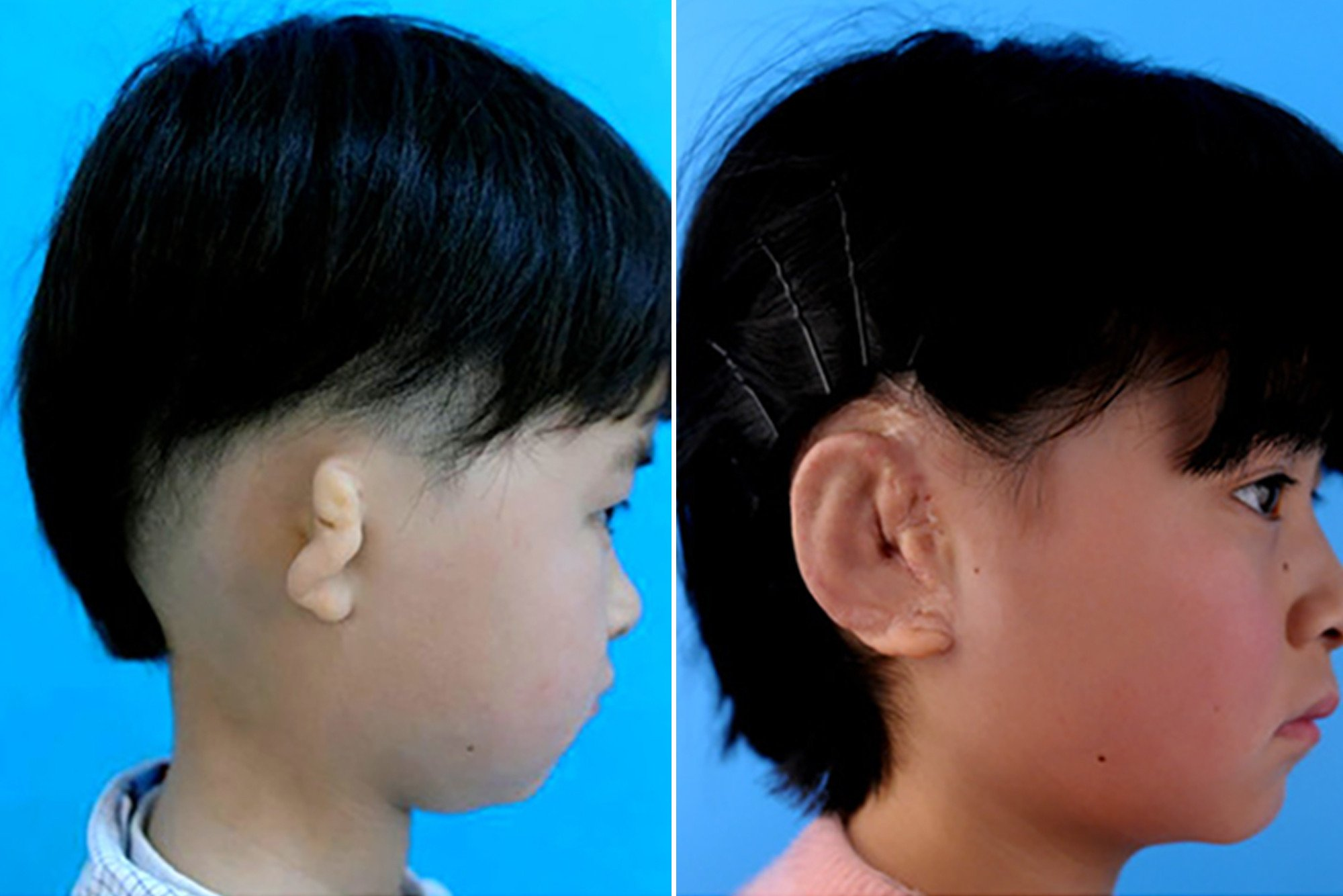 Kids receive new ears 3D-printed using their own cells