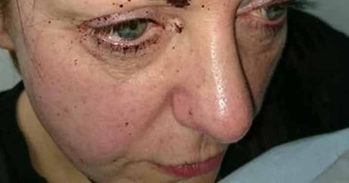Horrific injuries of mum battered and bitten in attack on her 50th birthday