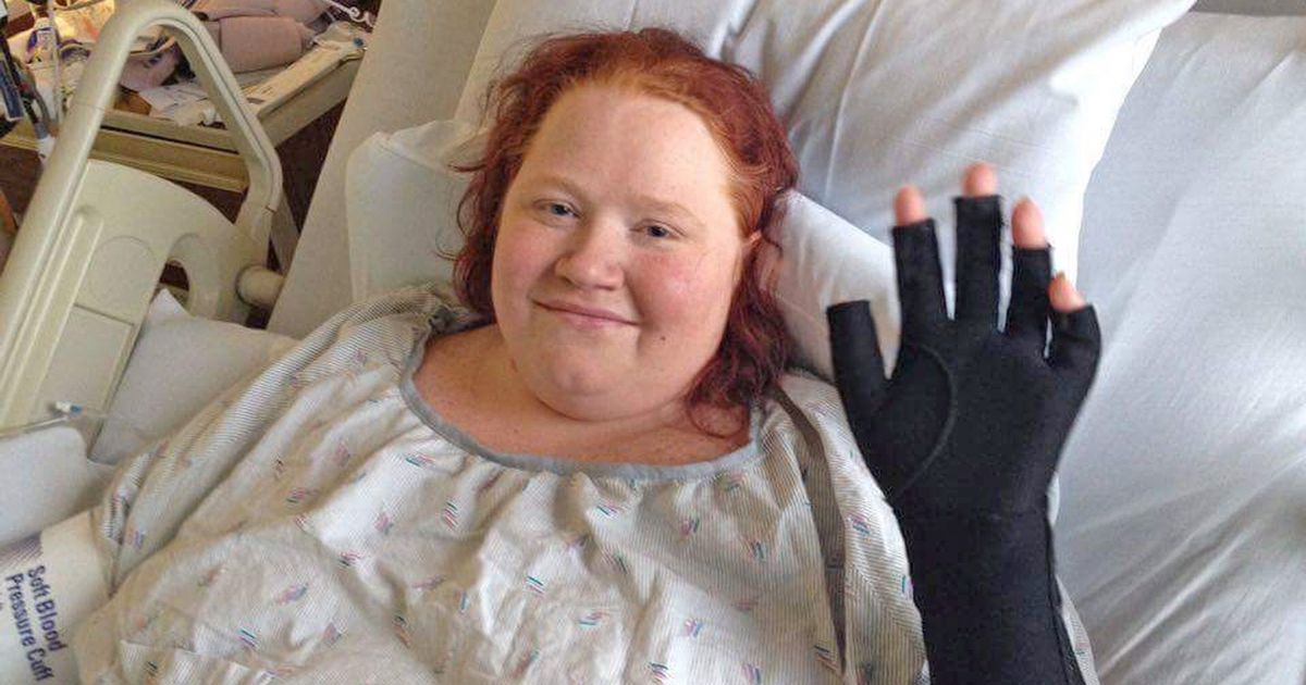 Mum left with 50% burns after being set on fire by boyfriend