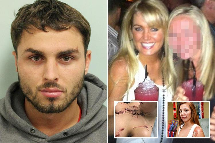 Arthur Collins sister DEFENDS acid thug claiming 'none of his victims were disfigured'