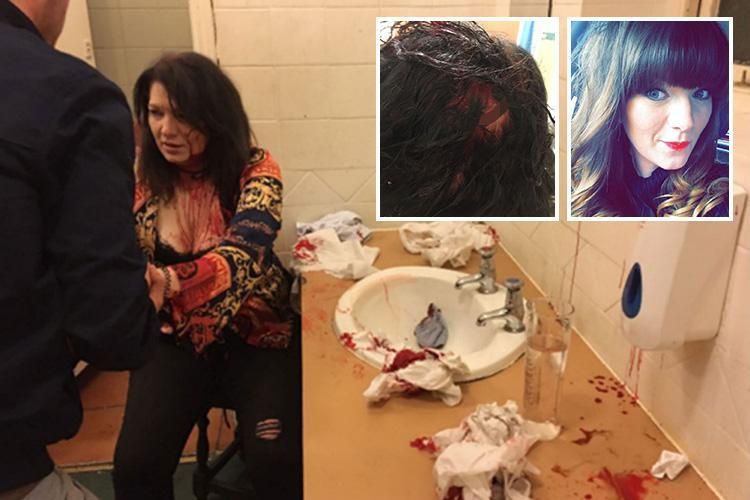 Mum's horrific injuries after jealous woman 'smashed her head against pub toilet SINK' in rage over boyfriend
