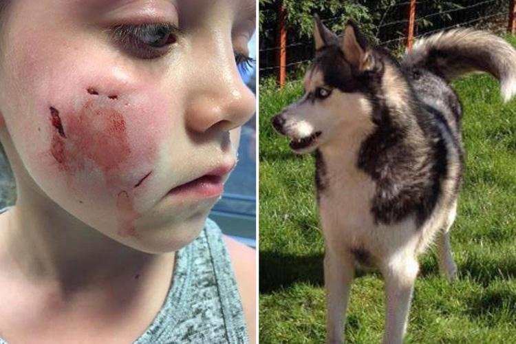 Horror injuries of girl, 7, bitten on her face by neighbour's dog – and owner continues to walk pet past their house every day