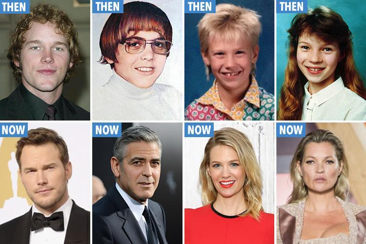 Awkward looking young stars who have transformed into the world's hottest celebs