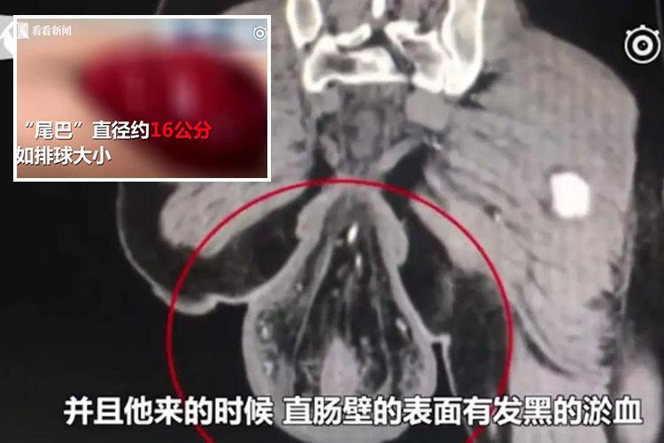 Gamer's rectum fell out because he spent too long playing video games on his phone while on the loo