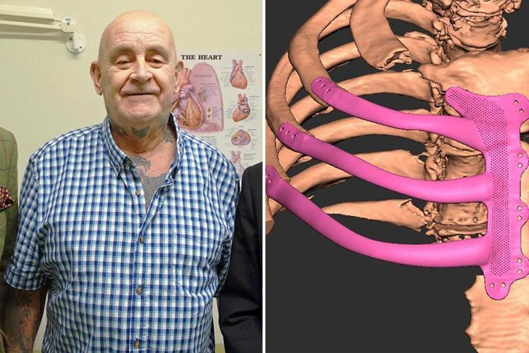 Grandad has chest rebuilt using 3D-printed technology in British first
