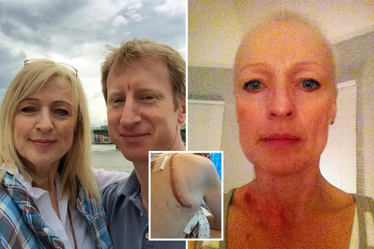 Mum, 55, who saw GP 20 TIMES is diagnosed with lung cancer that 'ate away at her ribs' – but only after threatening to complain