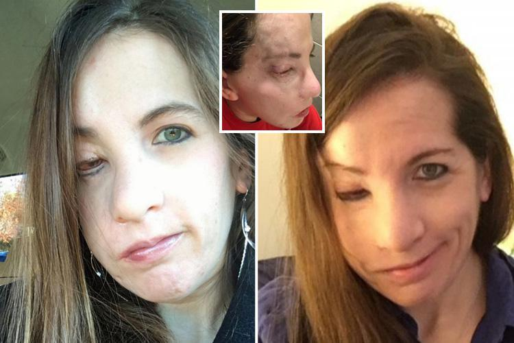 Young woman plagued by face-deforming tumours is desperate for an op to fit a fake eye in the hope of finding love before 'ticking time bomb' condition kills her