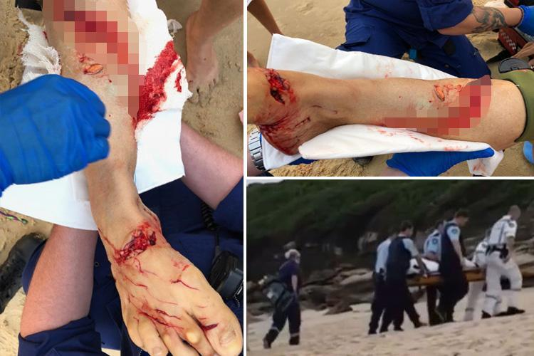 Aussie woman attacked by Great White Shark just yards from Sydney beach