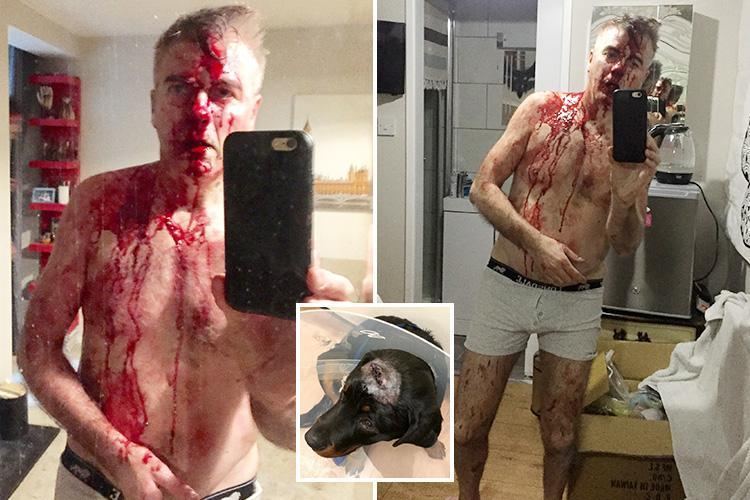 Dad pictured drenched in blood after using martial arts skills to fight off machete gang raiding his £400k home