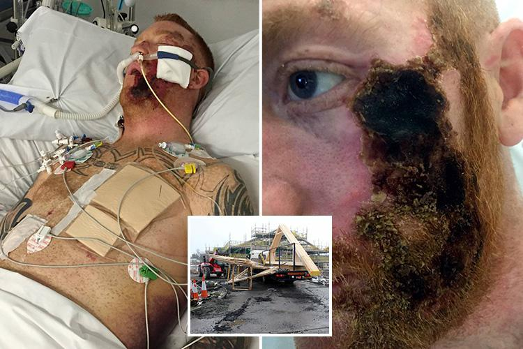 Horror injuries of workman covered in boiling TARMAC in freak lorry accident