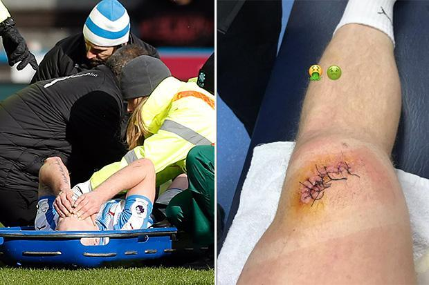 Huddersfield star Aaron Mooy reveals gruesome knee injury that left him needing stitches
