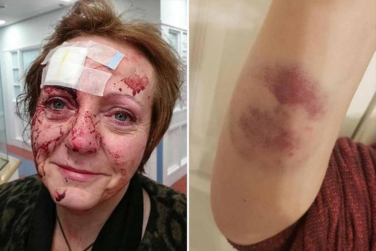 Horror injuries of mum beaten up and bitten in unprovoked attack on her 50th birthday night out