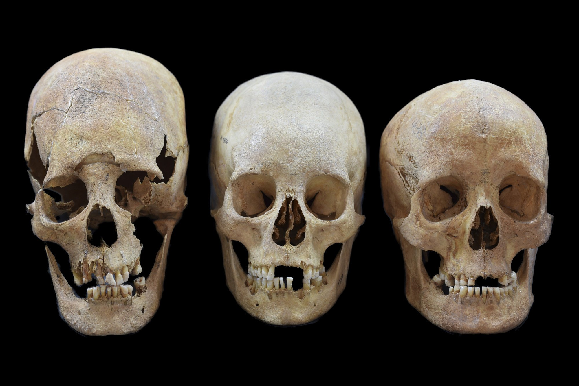 Skulls show women also moved across medieval Europe