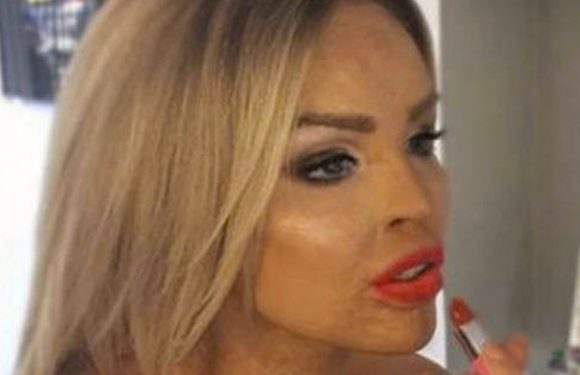 Katie Piper describes what she sees in mirror 10 years after horror acid attack