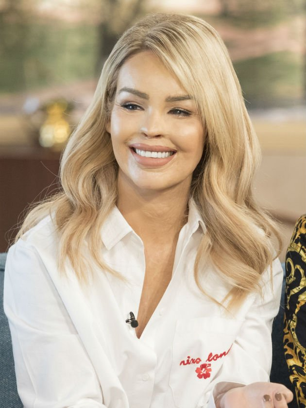 Katie Piper breaks silence after news her acid attacker could soon be freed