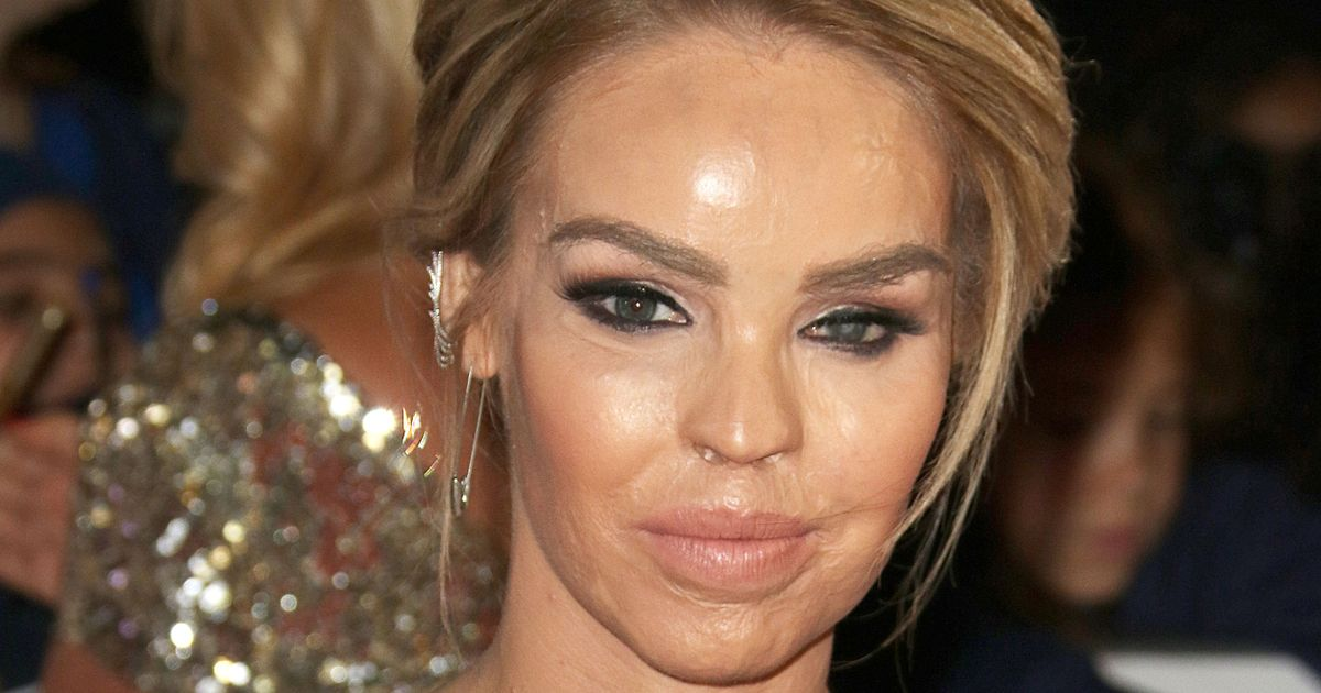 Katie Piper struggles to sleep after devastating news about acid attacker thug