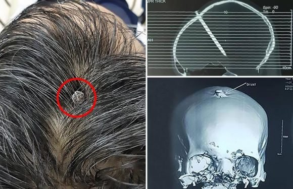Man with 3-inch nail in skull goes to hospital after two days… but can't remember how it got there