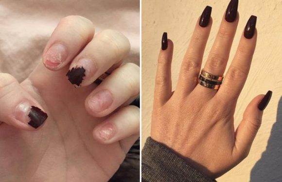 Woman reveals why you should never rip off your acrylic nails… and how to cure them with this one trick