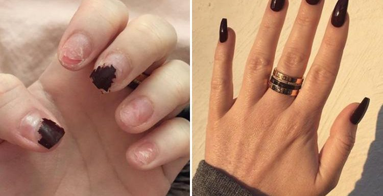 Woman reveals why you should never rip off your acrylic nails... and ...
