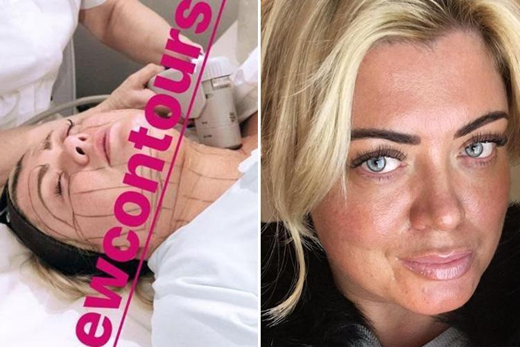 Gemma Collins continues her body transformation with a non-surgical face lift and fat freezing treatment