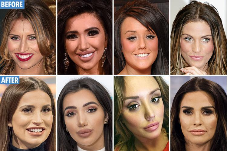 Selfies 'make your nose look 30 per cent BIGGER'… so is that why these stars went under the knife?