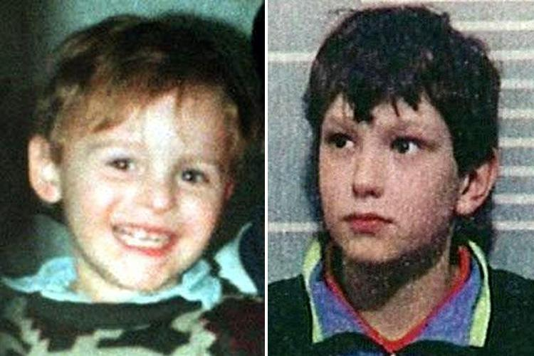 James Bulger killer Jon Venables demands PLASTIC SURGERY and you'll have to foot the bill