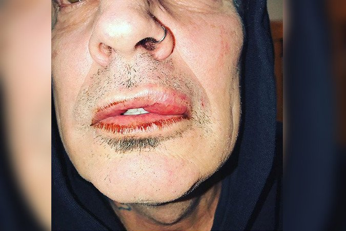 Tommy Lee says he was assaulted by his adult son