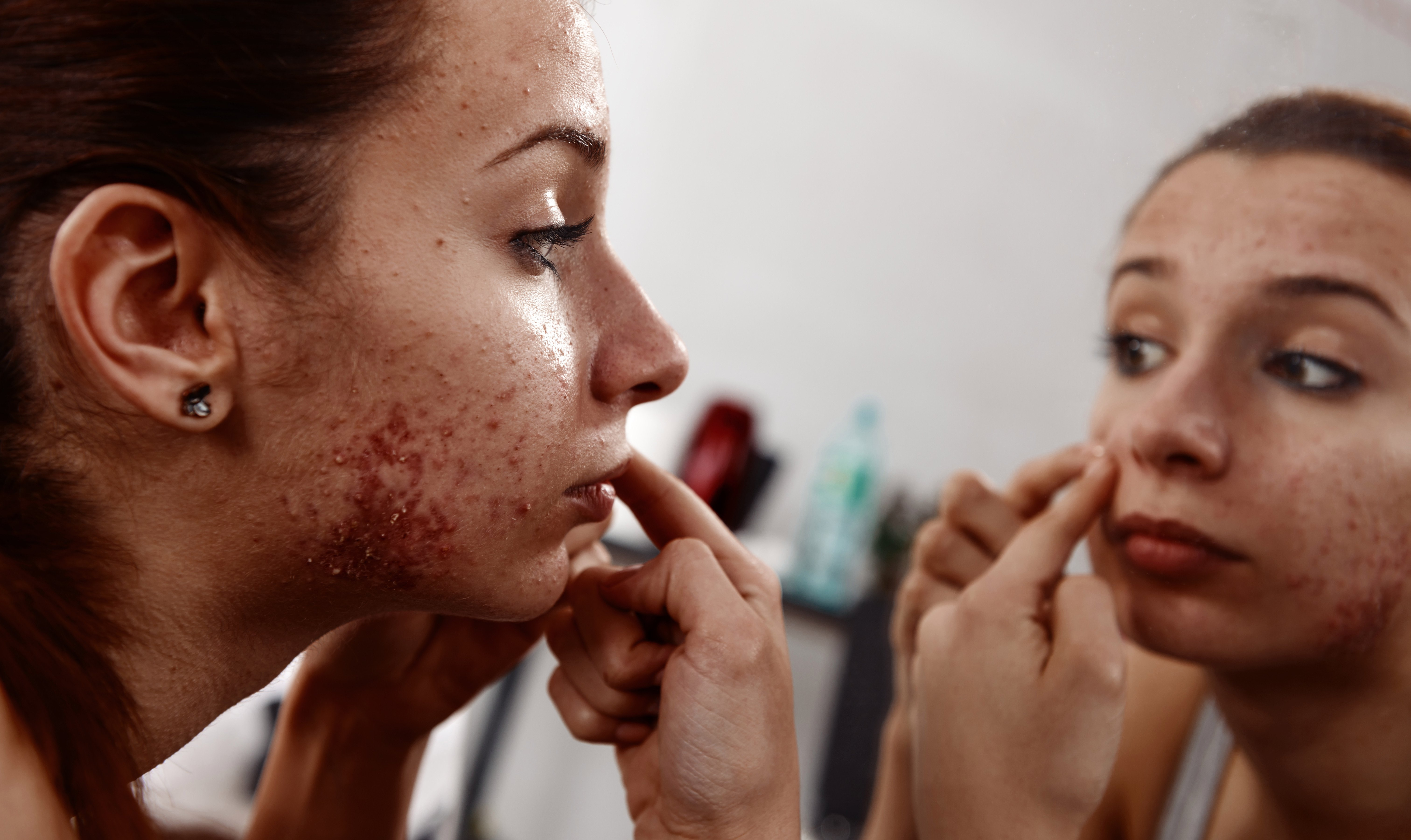 How can I get rid of adult acne? Seven of the best treatments to banish the blemishes