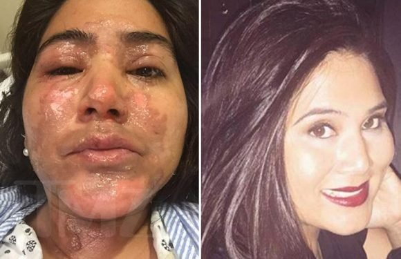 NutriBullet 'leaves woman with horrific burns' after it 'explodes in her face' – and now she plans to sue