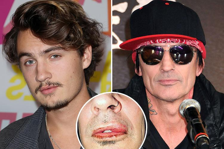 Tommy Lee accuses son Brandon of punching him in now-deleted Instagram post