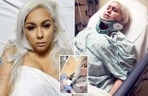 American woman, 28, wakes up with bizarre 'ENGLISH' accent after being hit on the head during a break-in