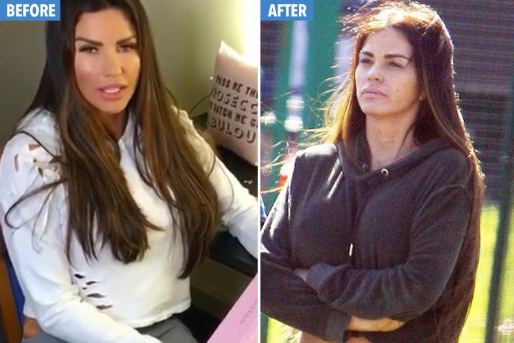 Katie Price shows off the results of new facelift after last one ruined her looks