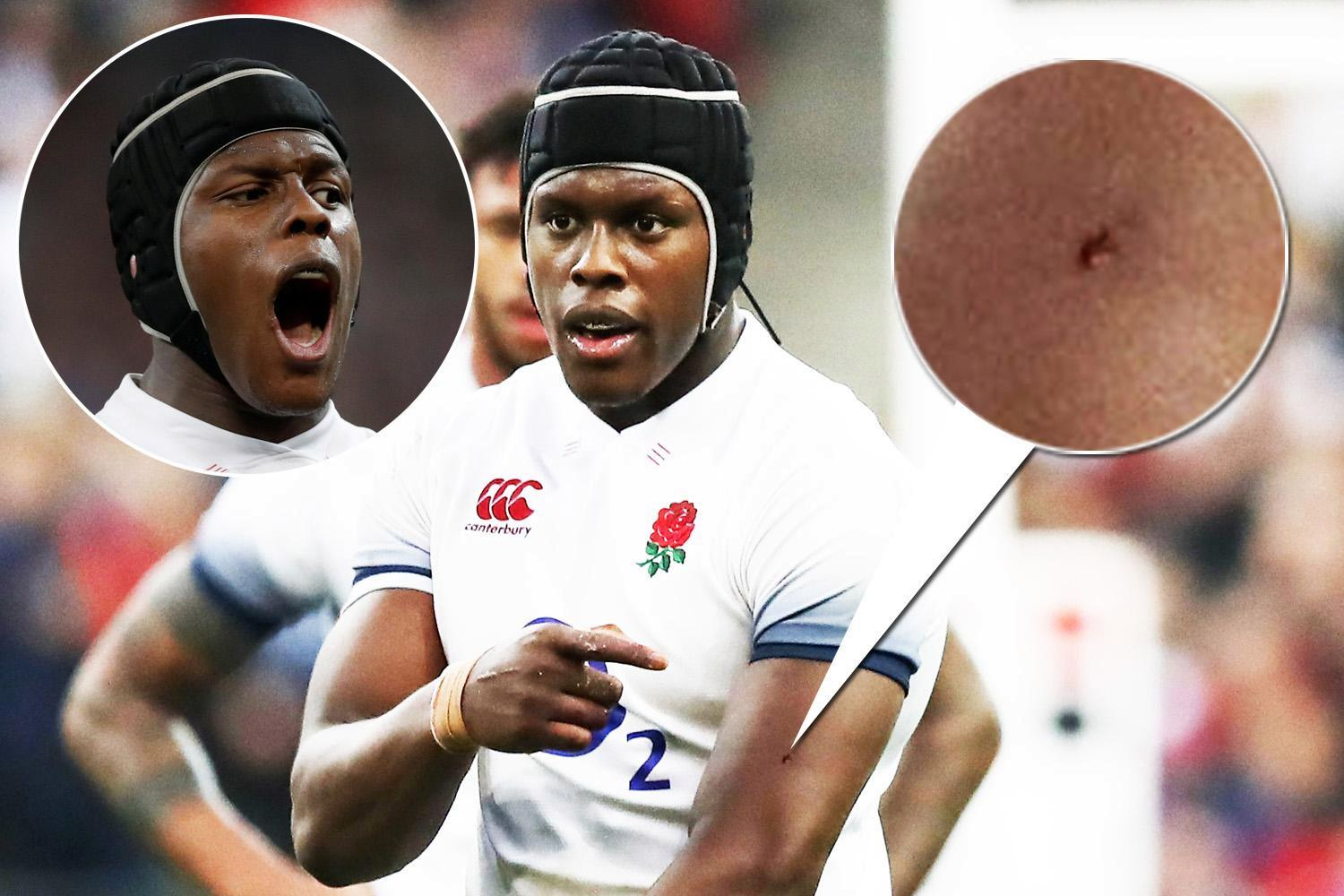 England lock Maro Itoje's claims he was bitten during Six Nations defeat to France will not result in charges