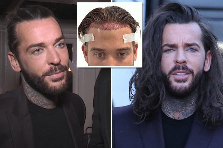 Towie's Pete Wicks reveals plans for a hair transplant like James Lock after getting older on TV made him 'insecure'