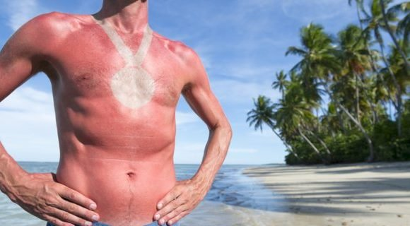 A Yale skin cancer expert says the popular notion that you need to soak up Vitamin D from the sun is a total myth