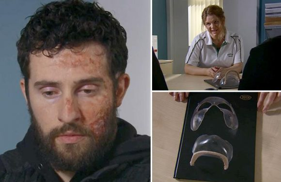 Emmerdale spoilers: Ross Barton heartbroken as he's told he has to wear a face mask for two years to help heal his acid attack scars
